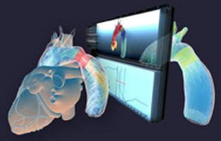 Computersimulation kann Kindern Herzeingriffe ersparen